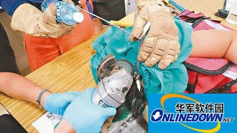 男子手指被卡水壶口拔不出 消防队出动切割器抢救